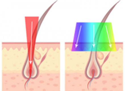 IPL vs  Laser: What's the difference? | SmoothSkin | USA